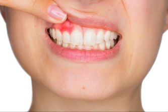 Periodontist In Towson Welcomes You To Check Out Their New Website ...