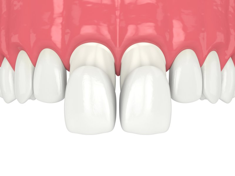 Porcelain veneers on upper teeth