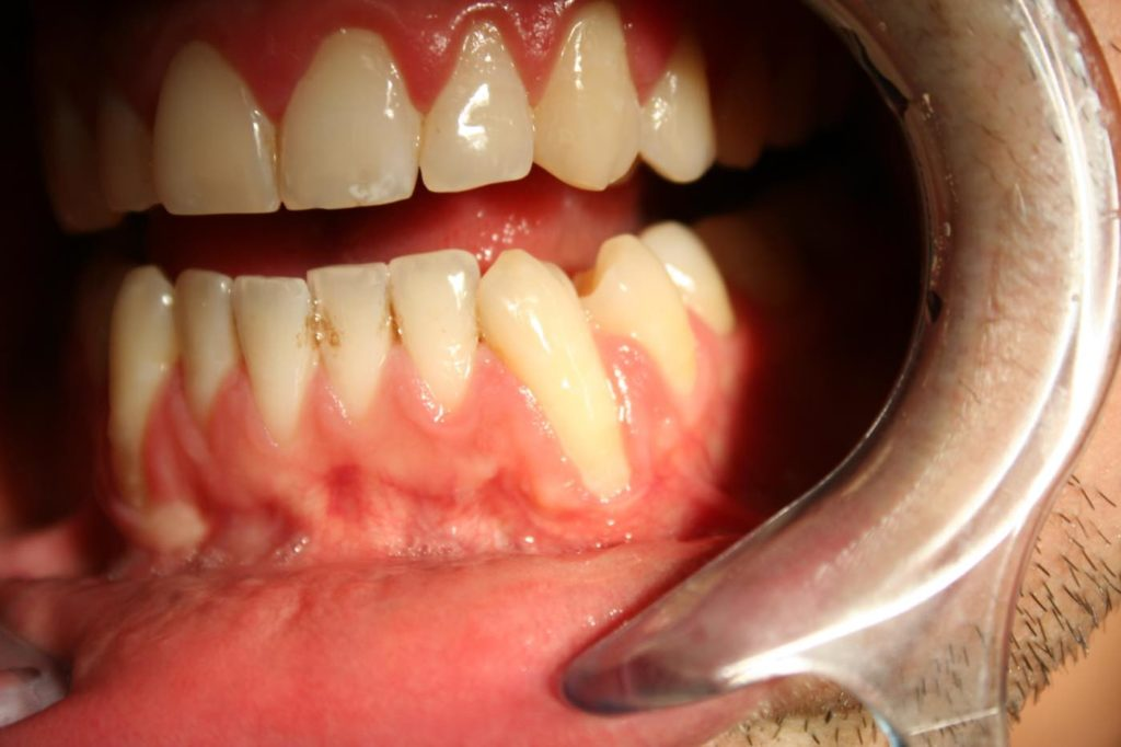 Severe gum recession on a canine tooth that needs treatment from a periodontist