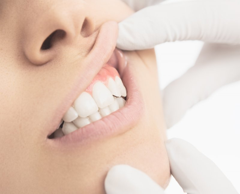 Periodontist in Severna Park checking woman's gums