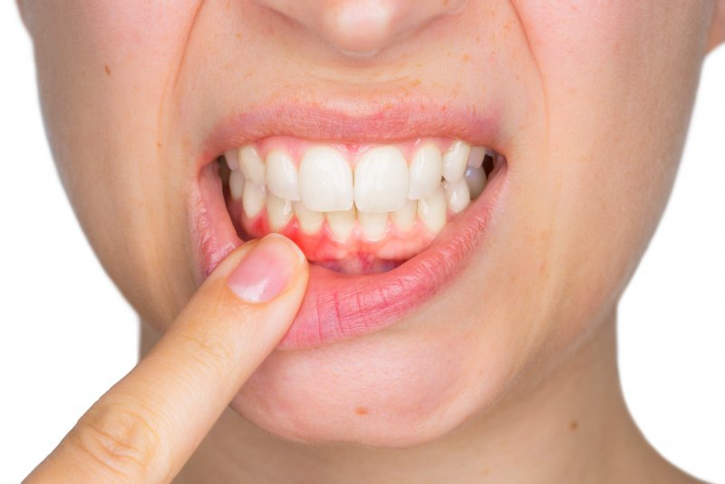 Woman with gum disease