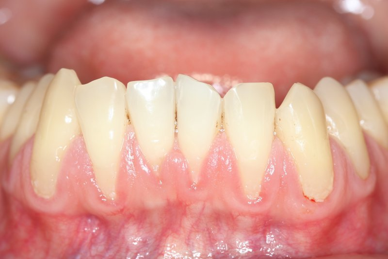 Close-up of lower arch of teeth with receding gumline